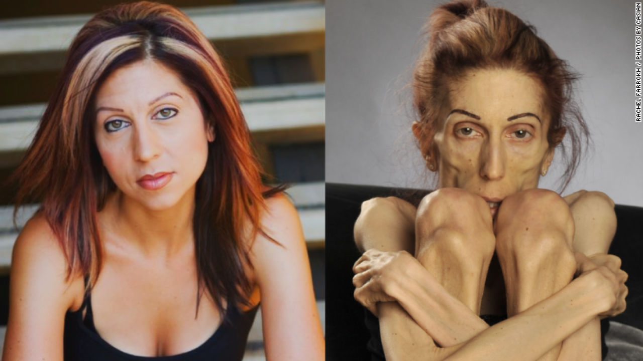 Actress battling anorexia at 40 pounds gets help after plea on social media