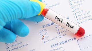 prostate screening.jpg