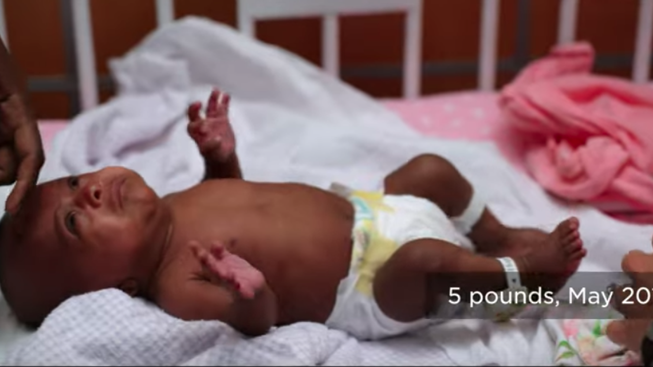 World's smallest surviving baby born at San Diego hospital