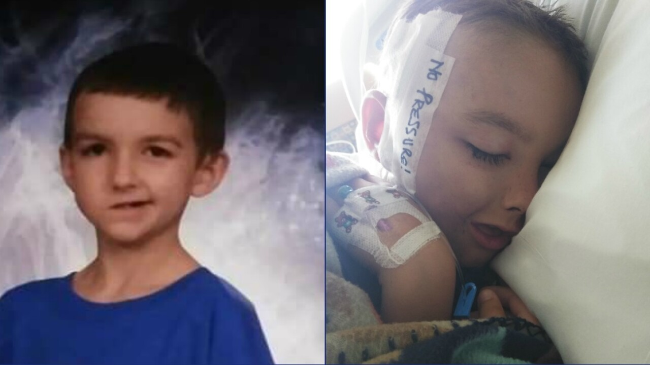 Mom says Hopewell boy who can't smile 'looks different' aftersurgery