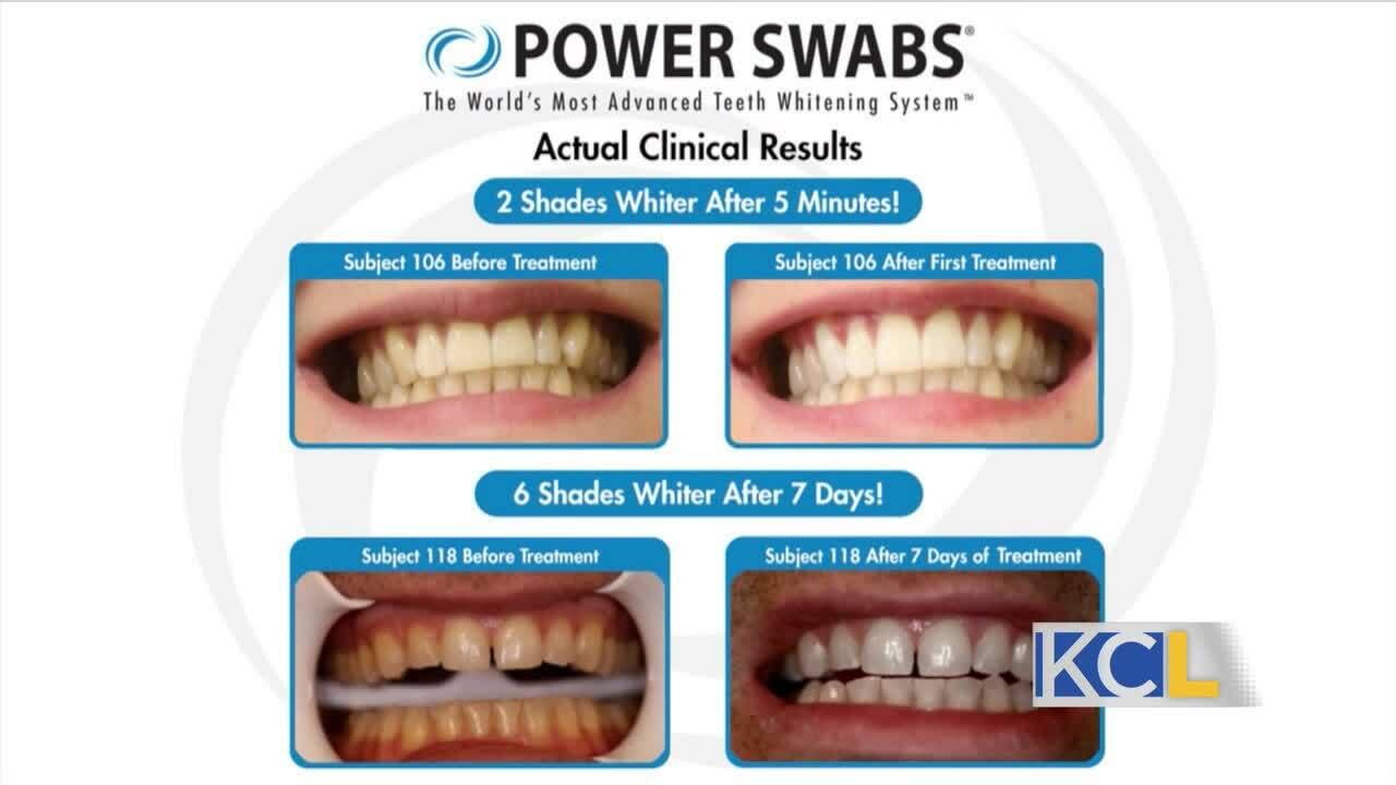 ?url=https%3A%2F%2Fewscripps.brightspotcdn.com%2F07%2Fdf%2F6e338b424db5b3ca74eb608880ac%2Fposter59 - Quick and easy teeth whitening in a week with Power Swabs