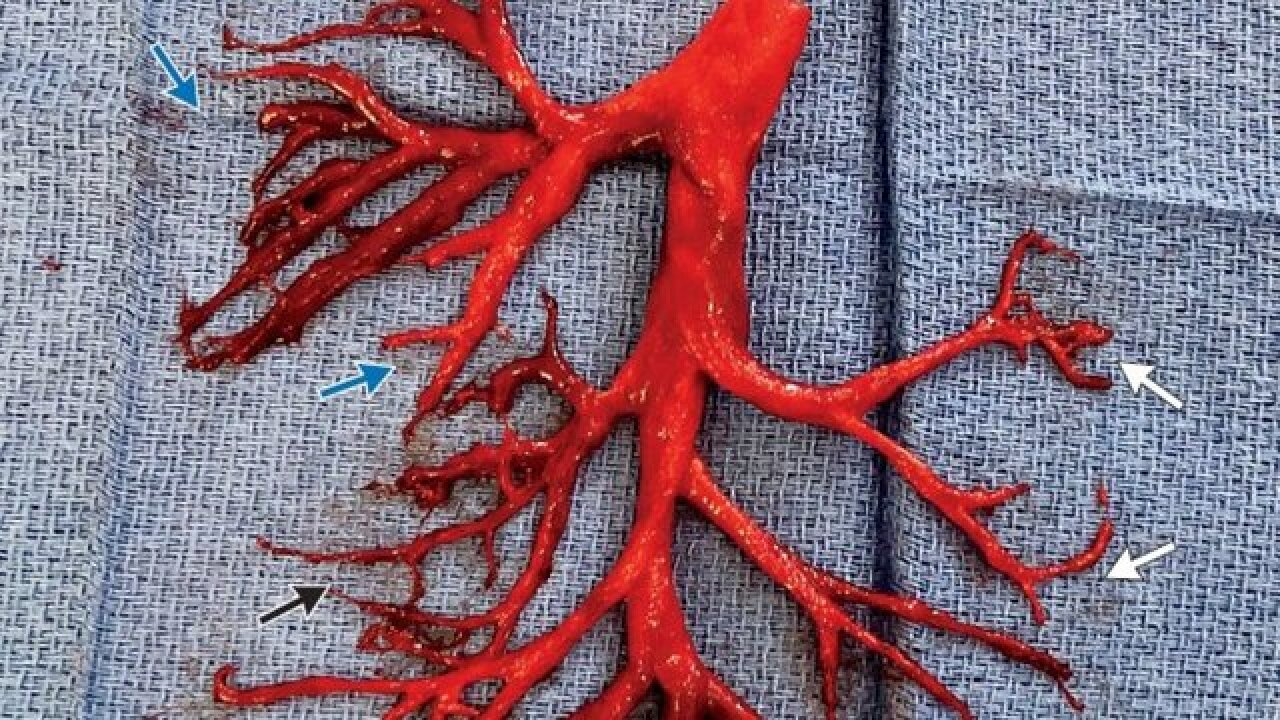 Man coughs up astonishing blood clot shaped like a bronchial tree