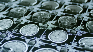 New discovery could be life changing for people with schizophrenia