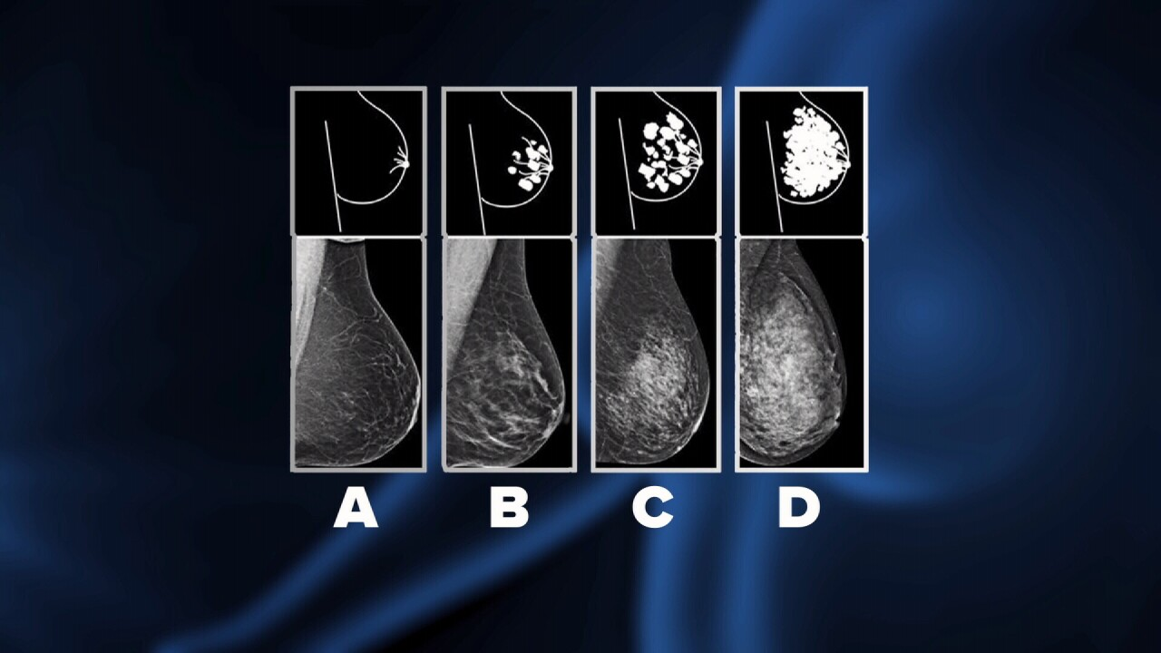 In Montana, doctors aren't required to tell women they have dense breast tissue- a known risk for cancer