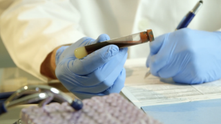Health experts say COVID-19 has caused decline in access to STD testing