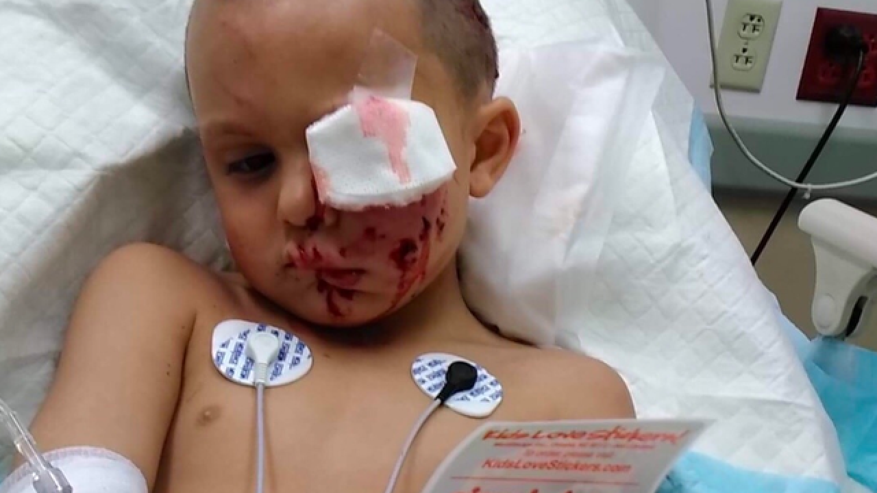 Boy needed 60 stitches after dog attack