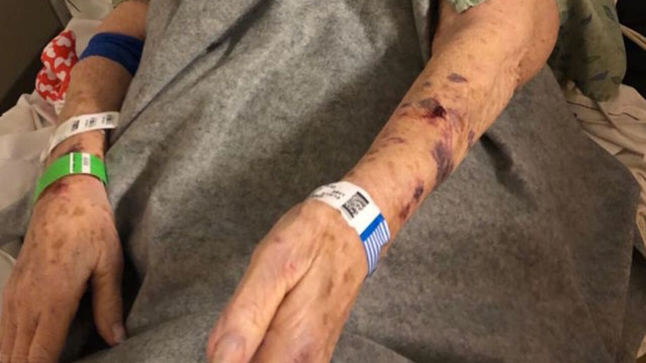 Family says Mesa police assaulted grandmother