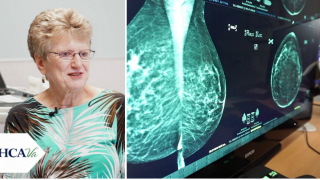How 3-D mammograms are helping catch breast cancer early: 'Survival is directly linked to tumor size'
