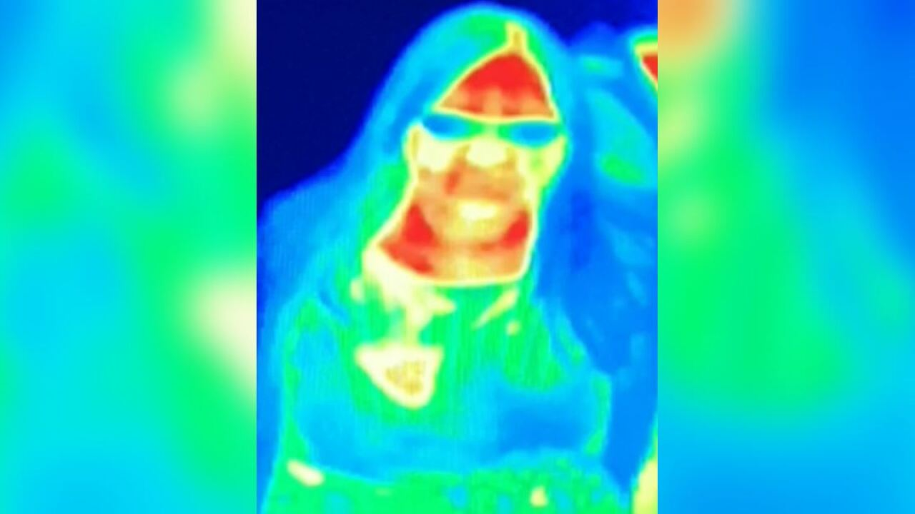 Heat camera at tourist attraction spots woman's breast cancer