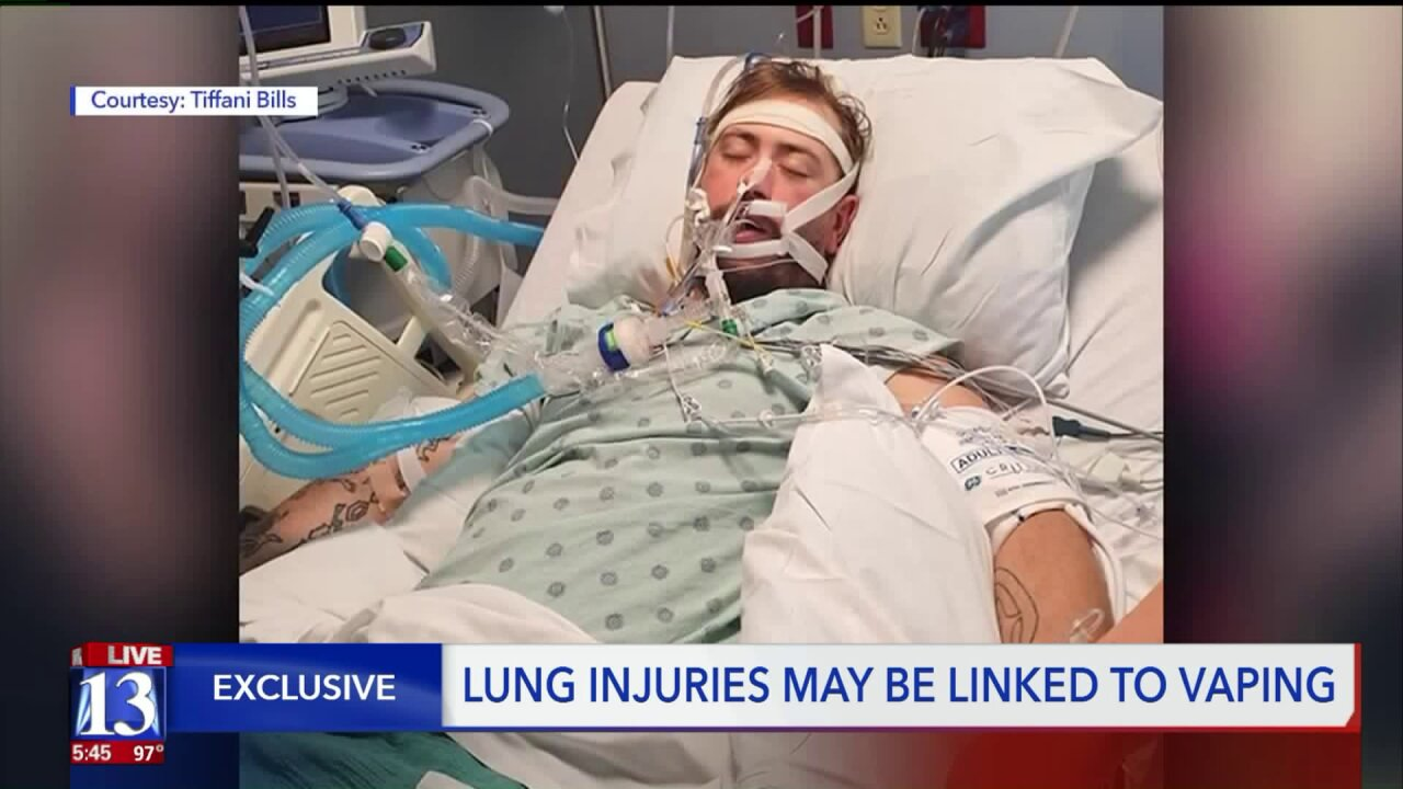 Utah man put in medically-induced coma from vaping-related lungdisease