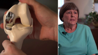 Partial knee replacements allow patients a faster, easier road torecovery