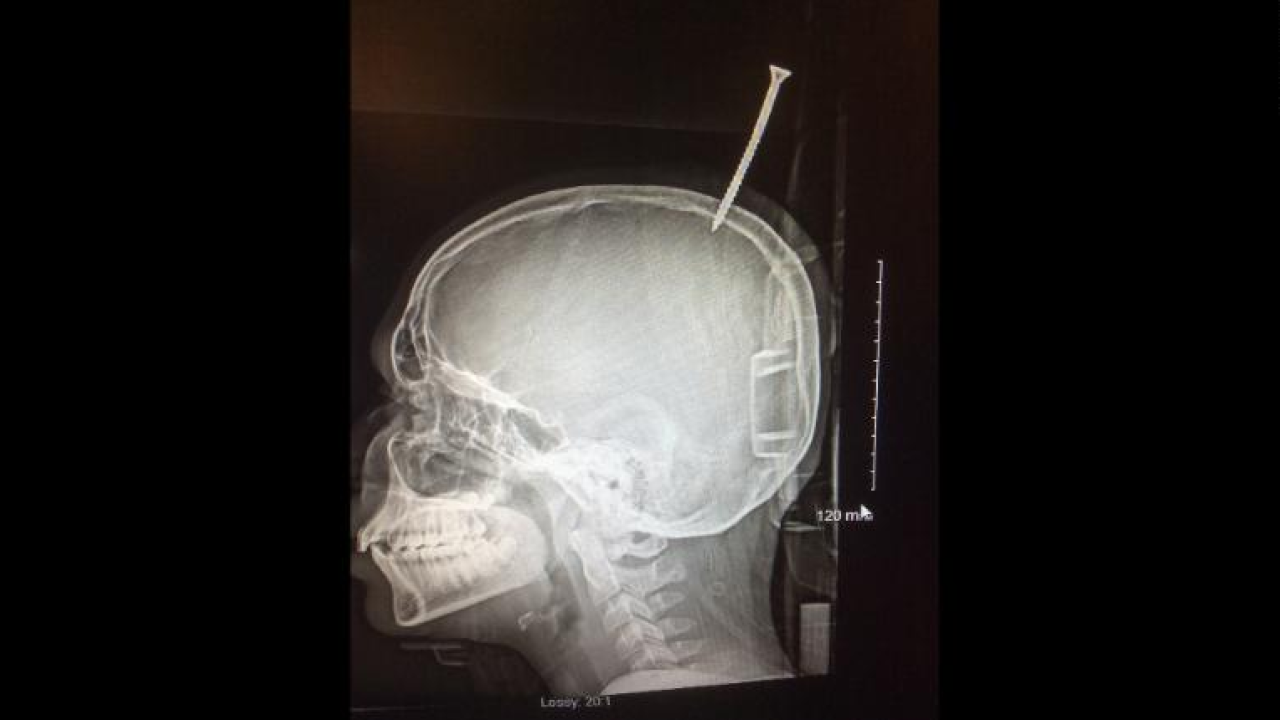Boy's skull pierced with screw in treehouse-building accident