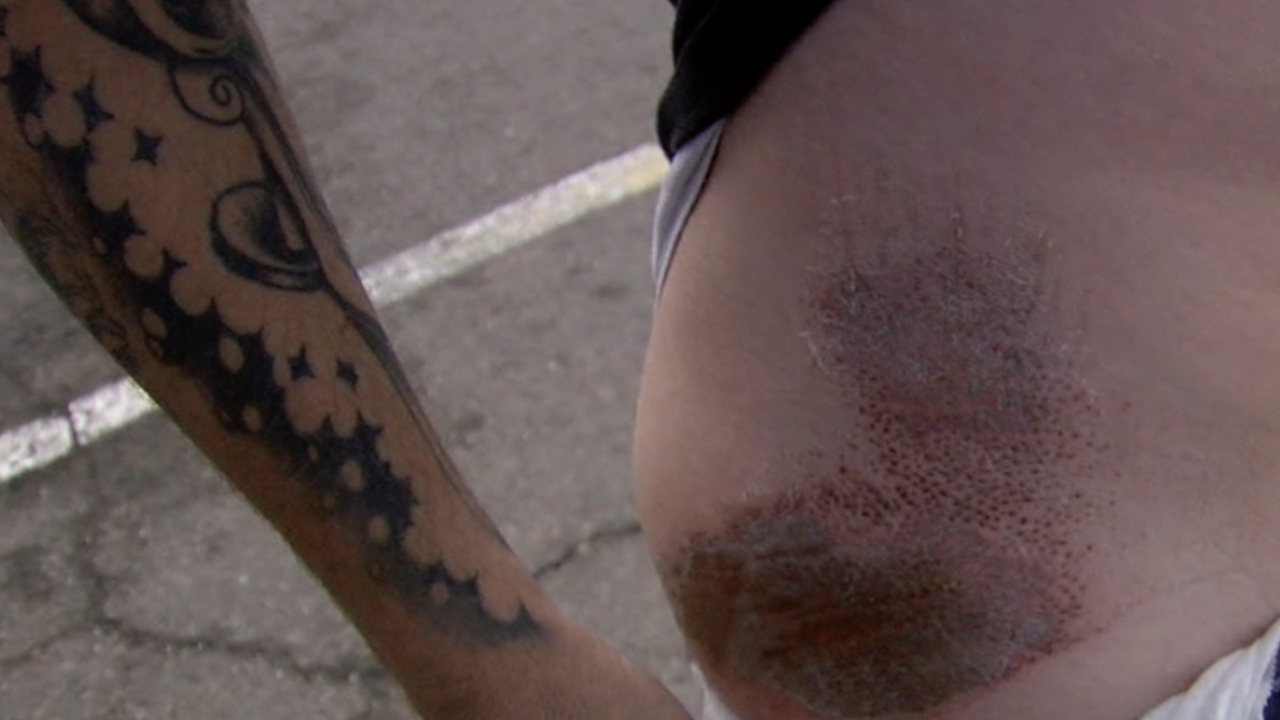 Kenny Mclain injuries