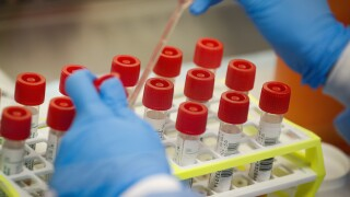 Coronavirus test used by NBA players gets FDA approval