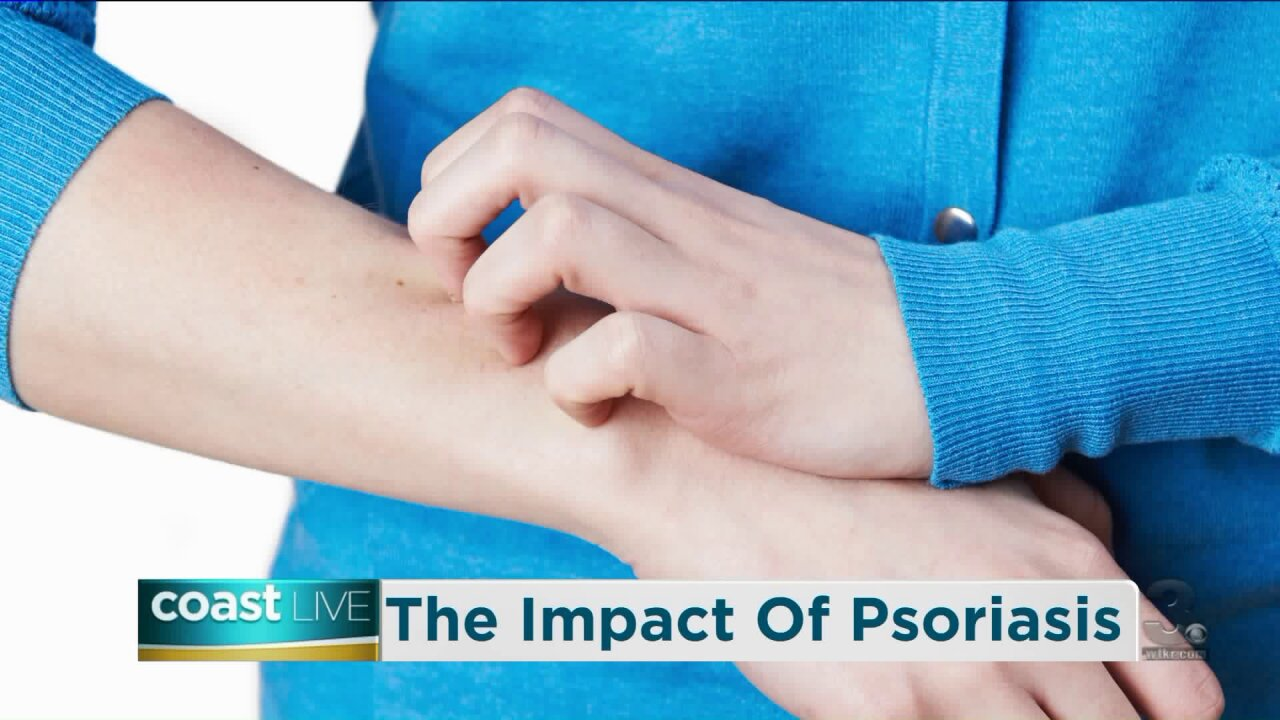 The invisible impact of moderate-to-severe plaque psoriasis on Coast Live