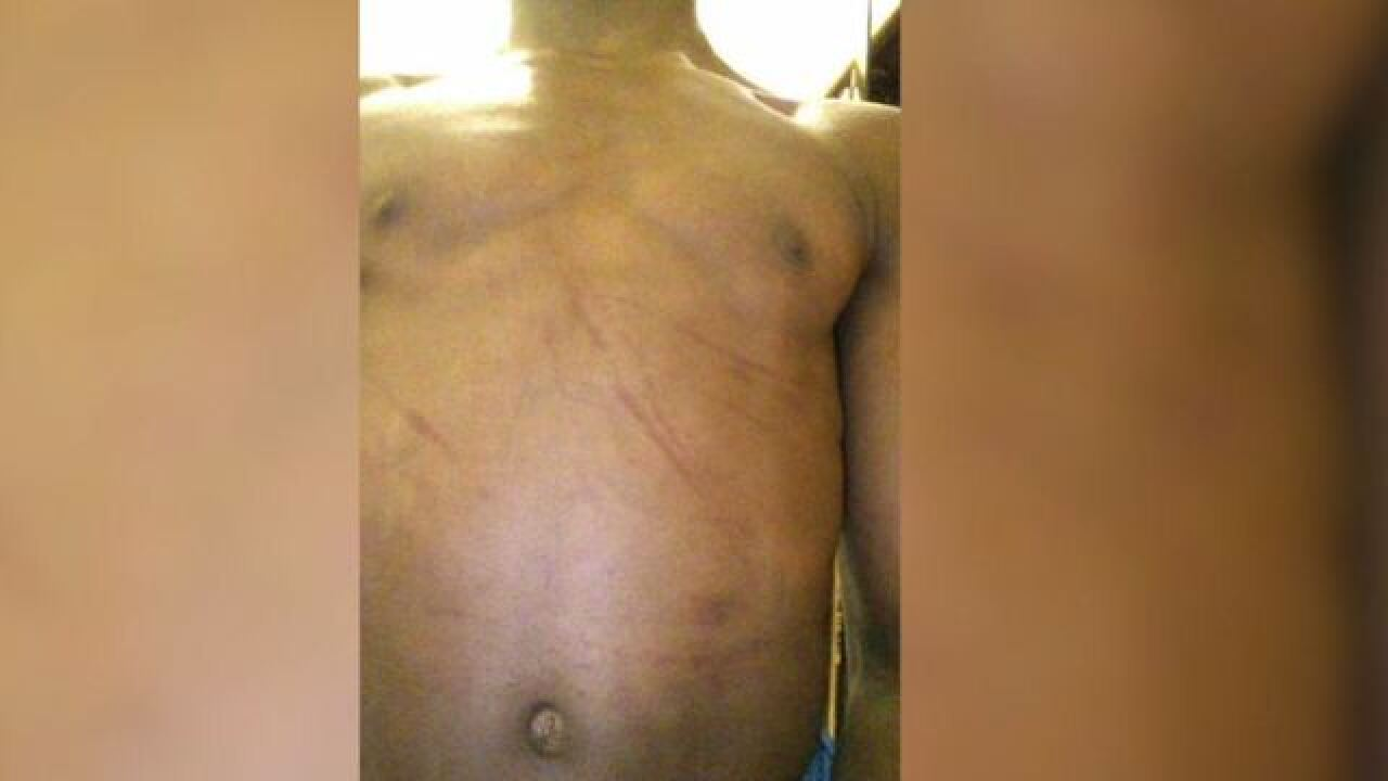 Mom shares son's attack to push hate crime law