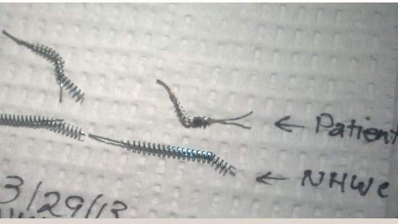 Essure birth control: Thousands of women reporting severe medical reactions to Essure
