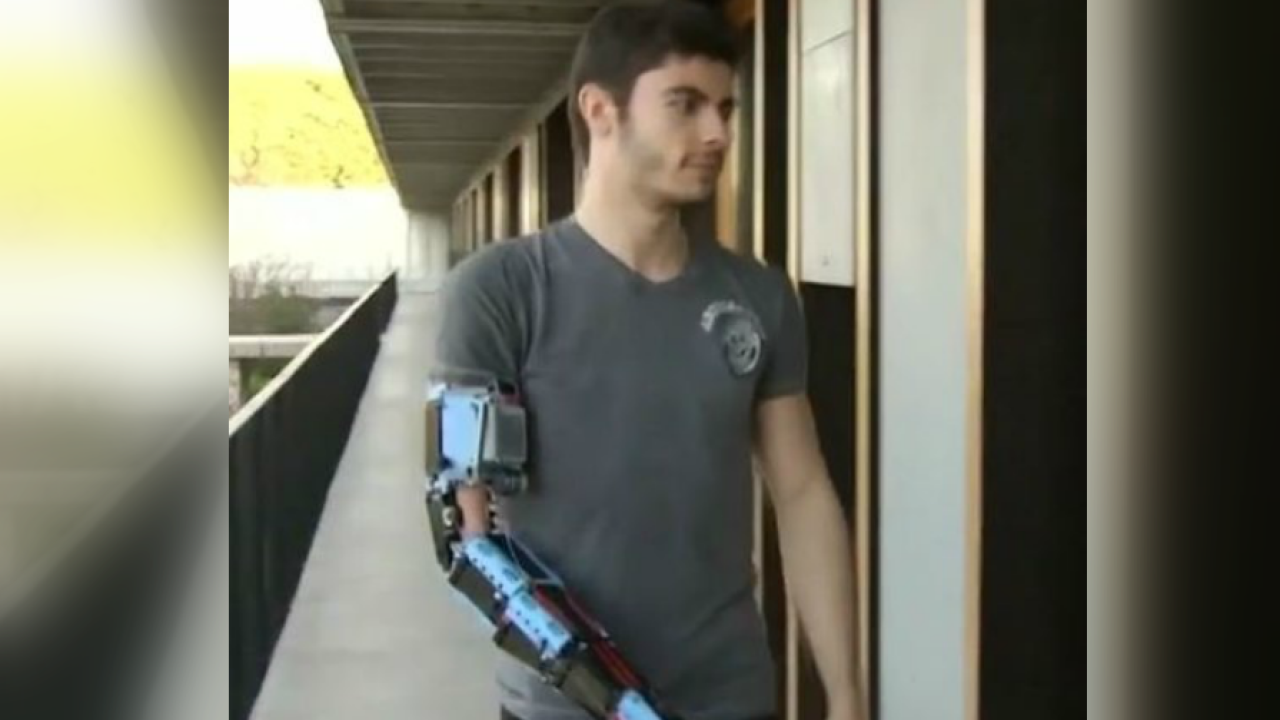 19-year-old born without lower arm creates prosthetic out of Legos