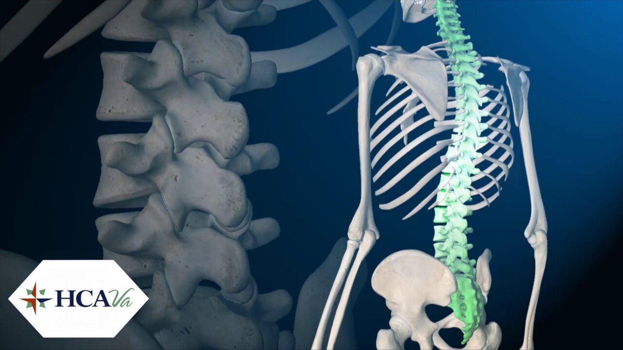 How new surgeries are helping people with debilitating spine conditions
