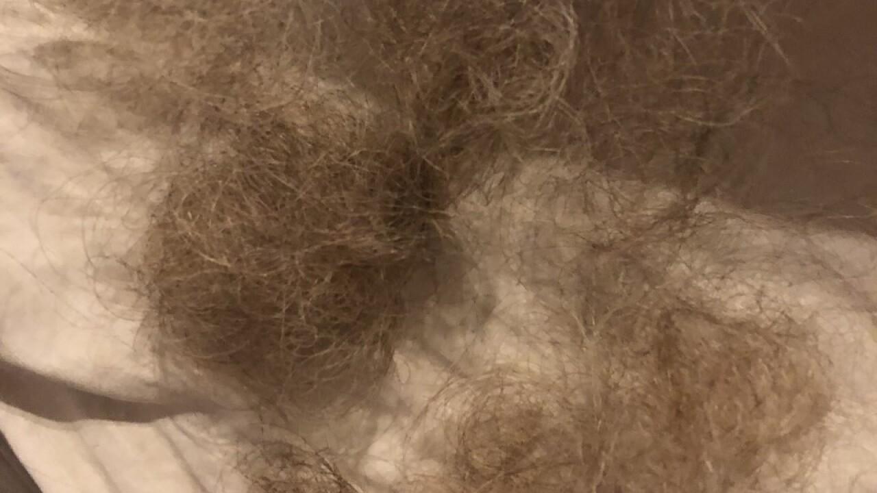 Hair clump - Pam Benson