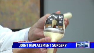 Medical Moment: Total Joint Knee Replacement