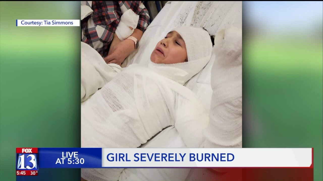 Holiday candle catches fire to Idaho girl's sequin shirt, causing severeburns