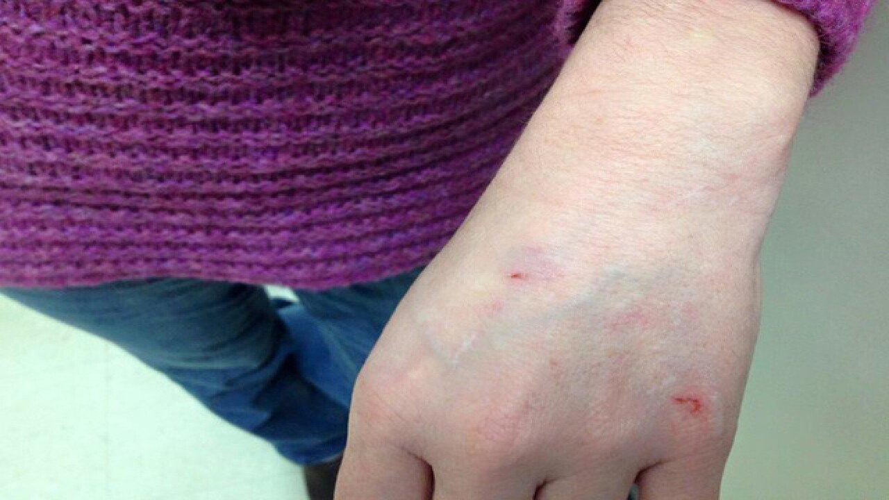 Special Ed. teacher sues after violent attacks