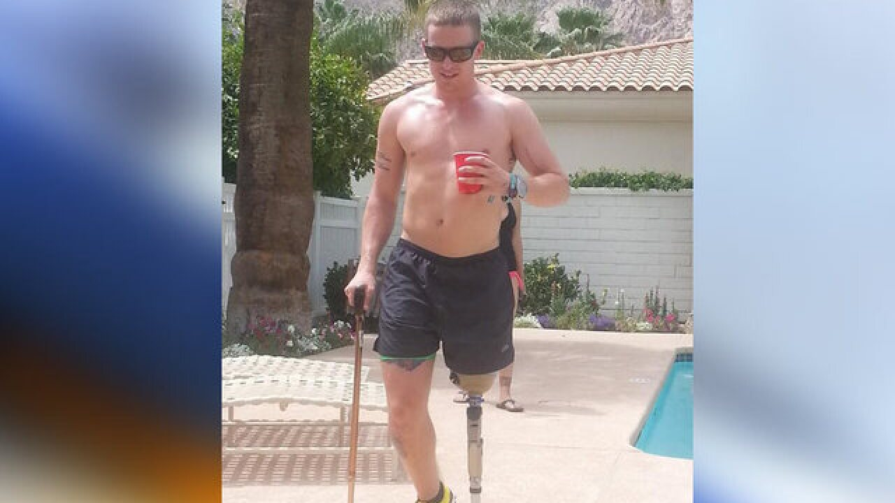 Man overcomes losing leg to inspire others