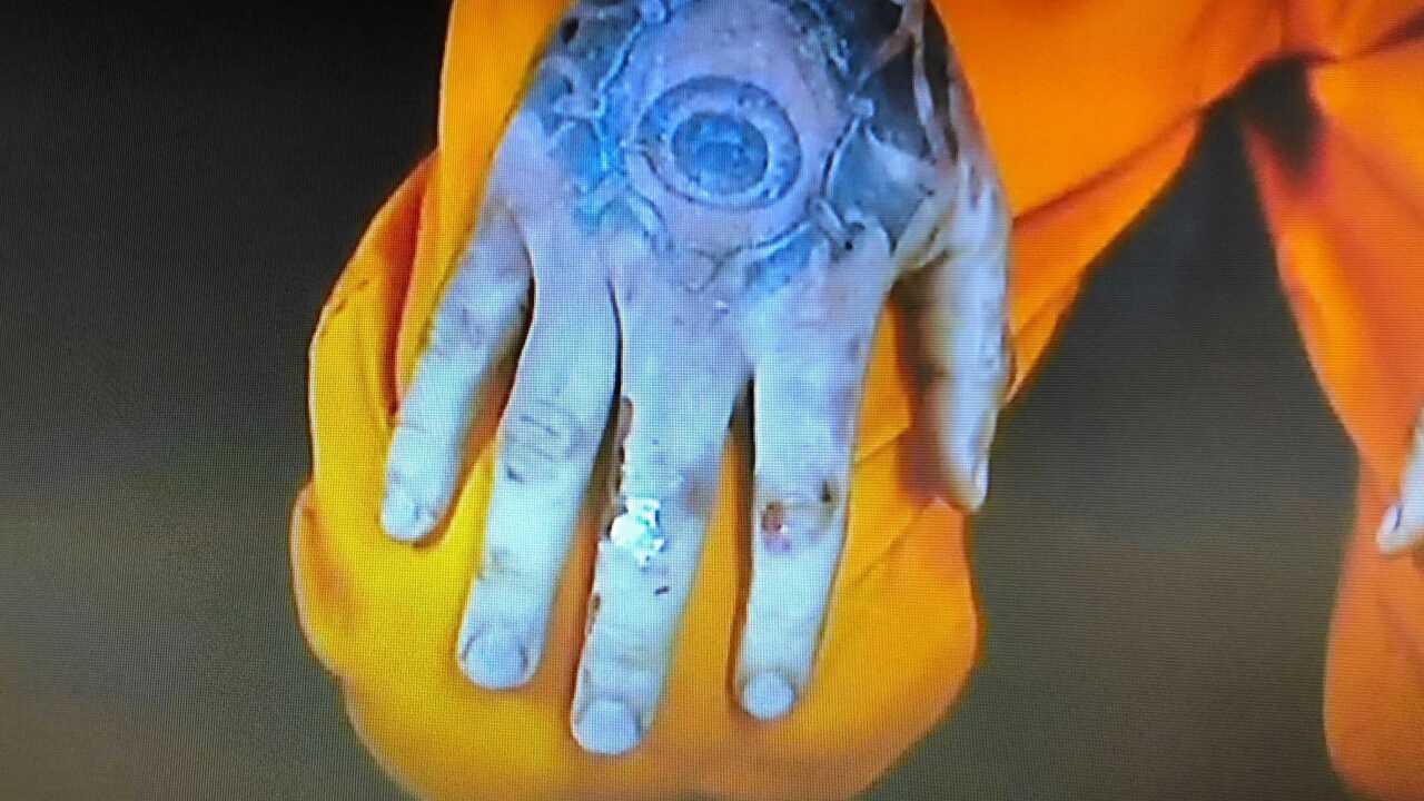 kylr yust right hand injuries