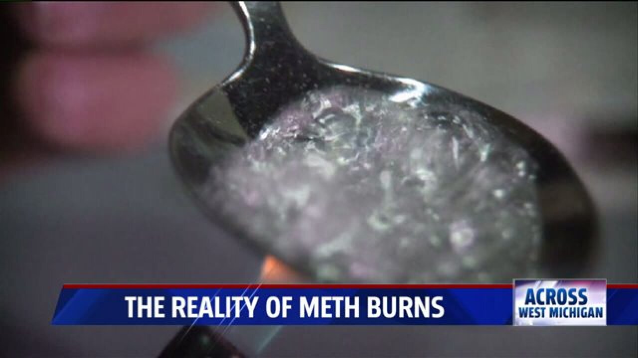 Scars of meth: beyond the addiction