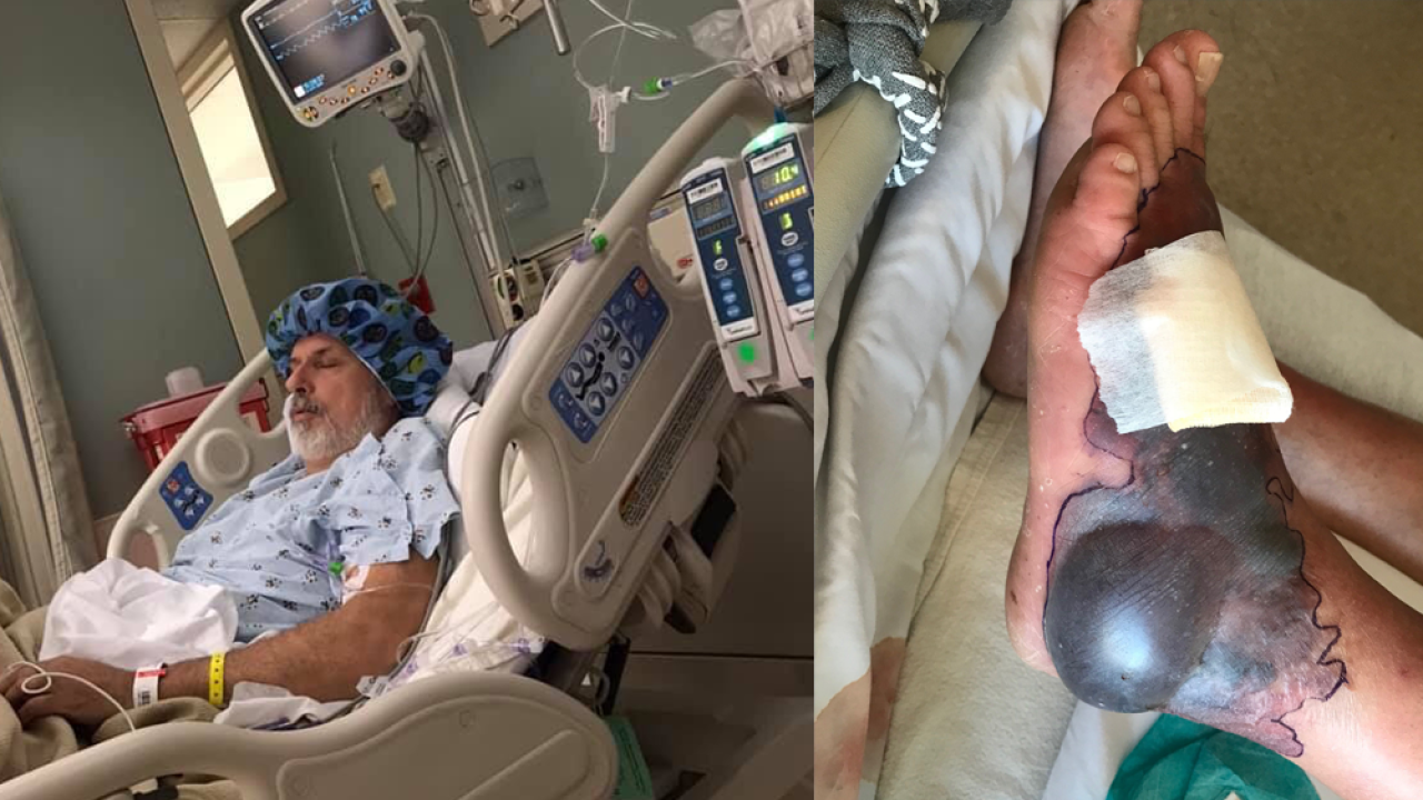 Ohio man contracts flesh-eating bacteria in Florida, nearly loses foot