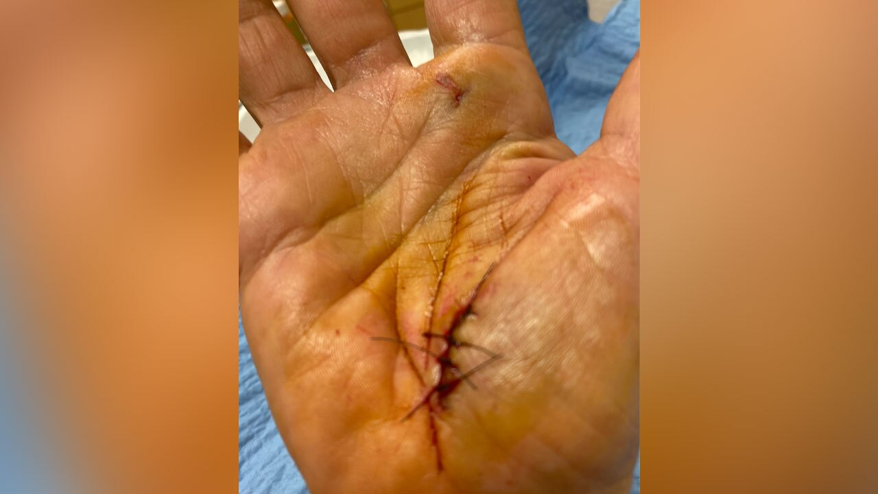 Suzan Marciano, hand wound from attack by alligator in west Boca Raton