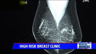 High Risk BreastClinics
