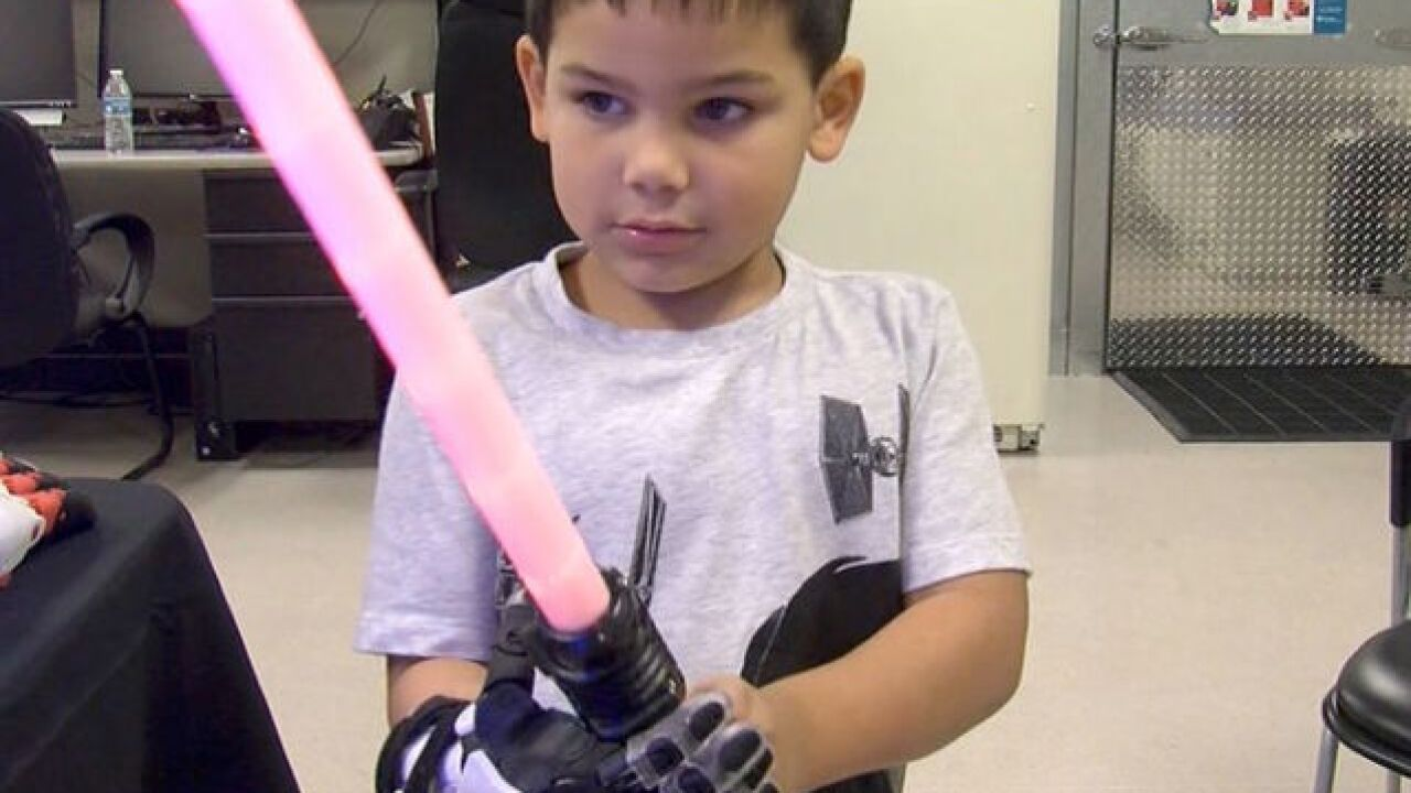 Arizona boy gets 'Stormtrooper' prosthetic hand from non-profit More Foundation