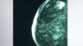 Your Healthy Family: New minimally invasive breast tumor treatment available in CO