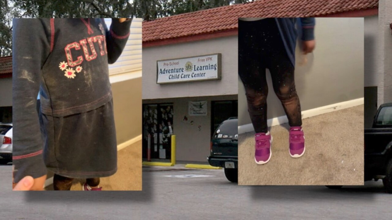 d52ec85cc New Port Richey mom says her toddler came home with chemical stains on  clothes