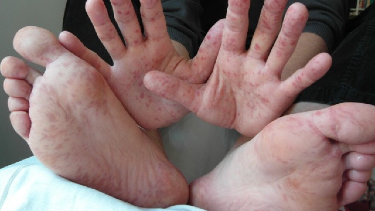 Experts warn hand, foot and mouth disease can spread to adults