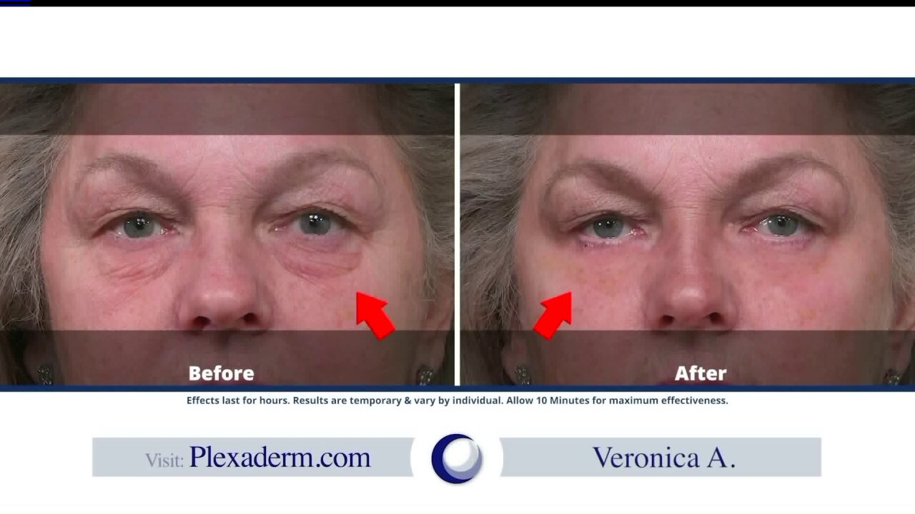 Reduce the appearance of wrinkles withPlexaderm