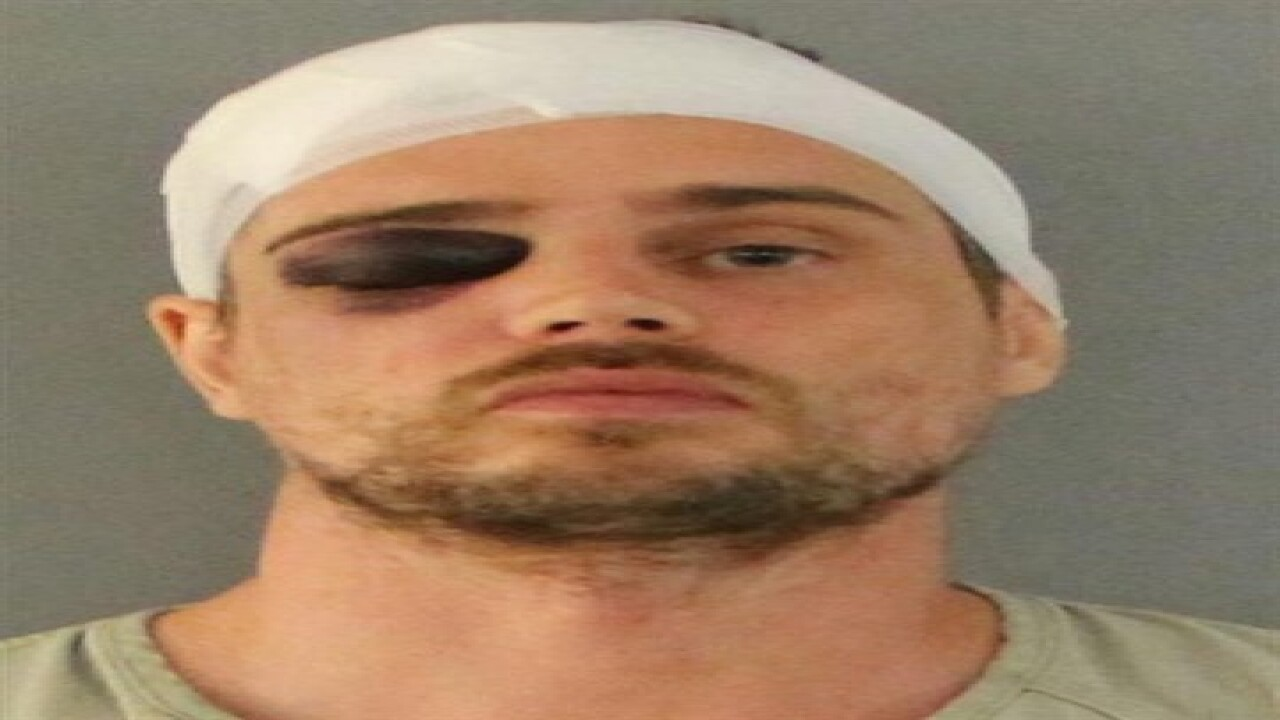 Florida burglar beaten with own weapon