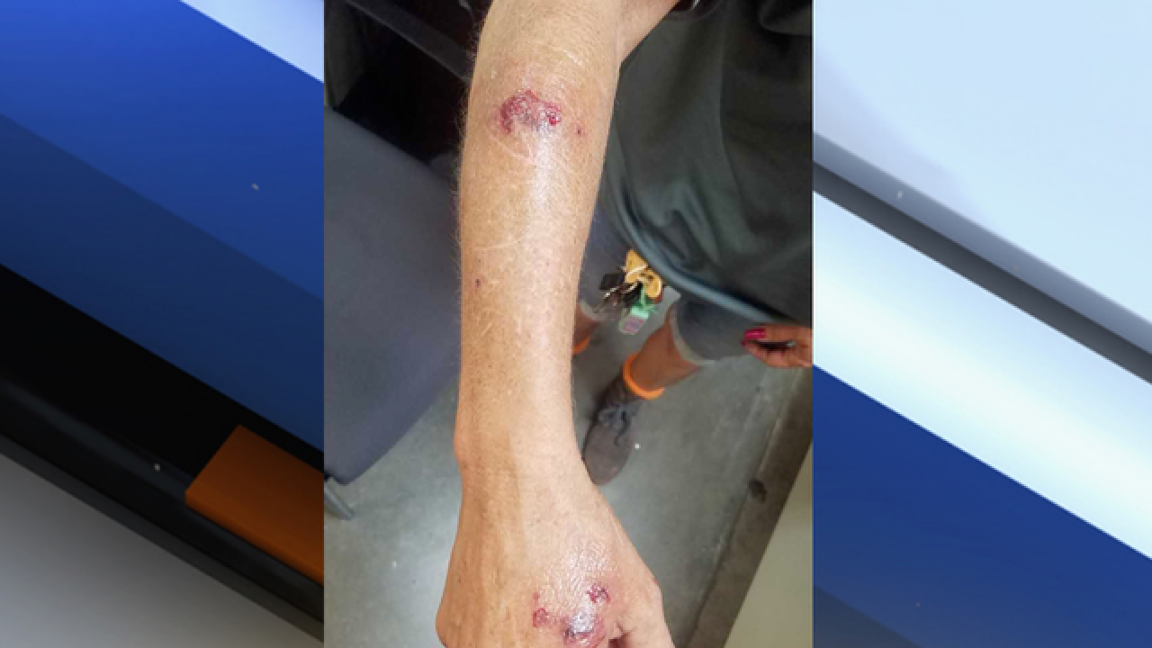 Home Depot worker attacked by spider monkey in Okeechobee County