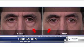 Look younger in minutes with the power ofPlexaderm