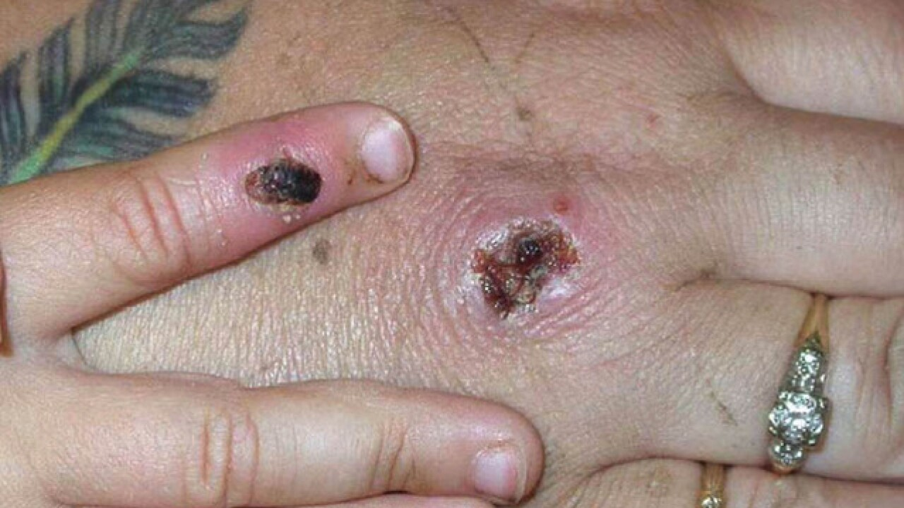 Monkeypox: First cases of rare infection diagnosed in UK