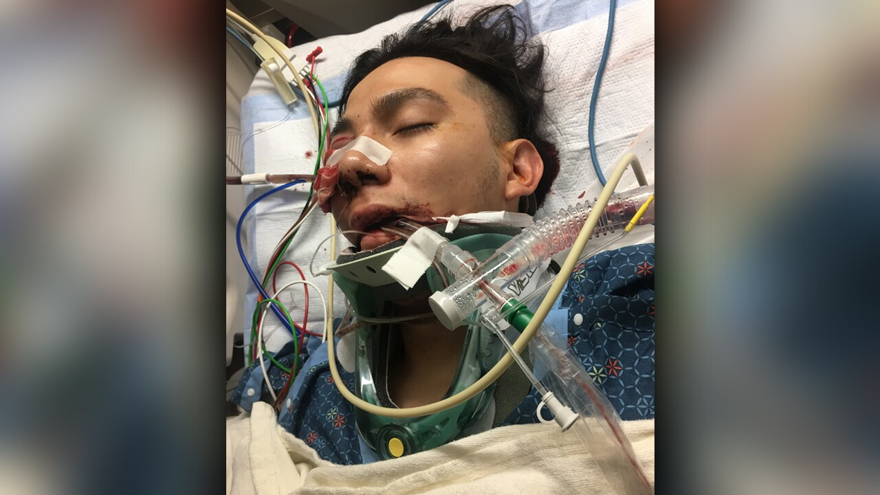 Family says brutal beating at Salt Lake tire shop happened after man wielding metal bar asked if they were Mexican