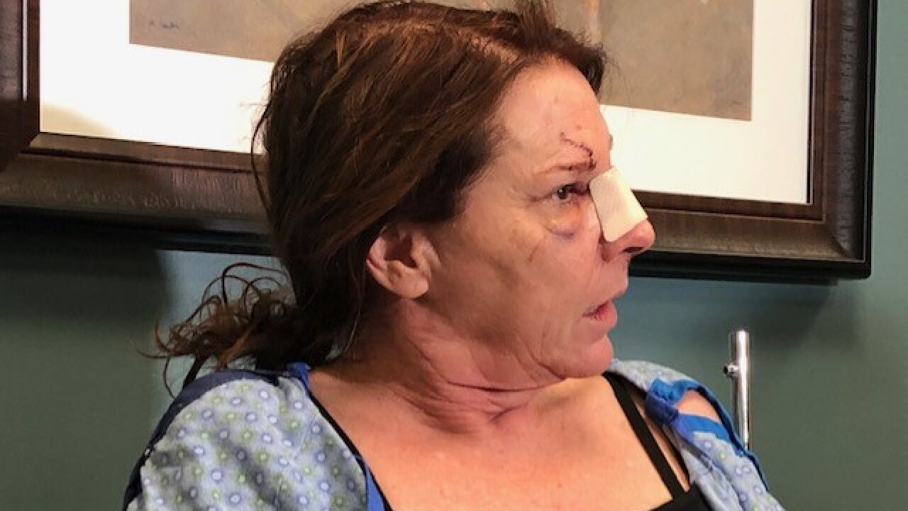 Leslie Maddox survived horrific crash