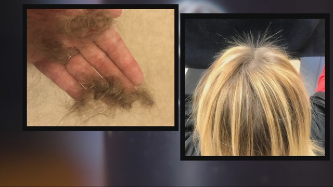 why does monat cause hair loss