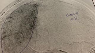 Kathy Stovall tumor.jpg