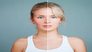 4 Methods for Skin RejuvenationThat Enhance Your Appearance