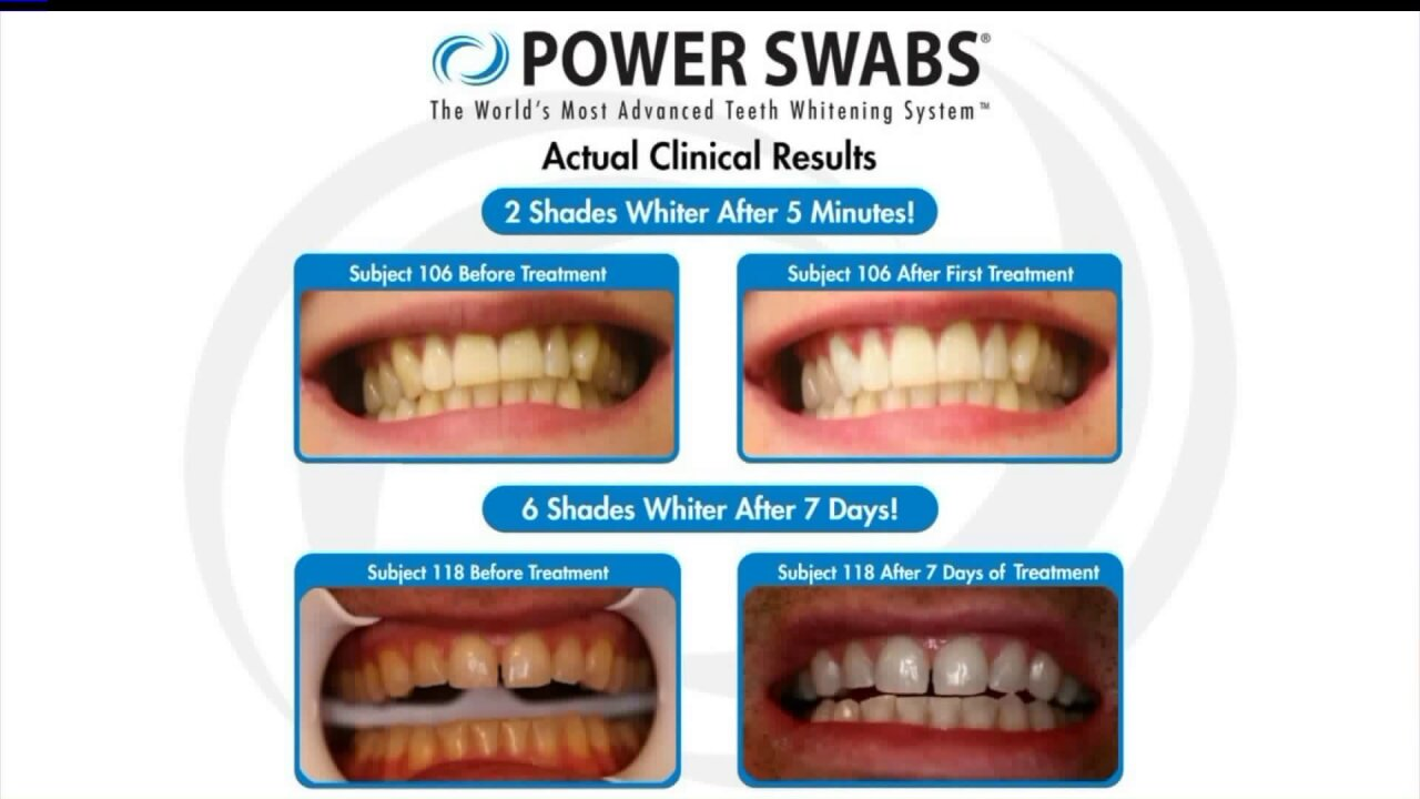 Get a brighter smile with Power Swabs