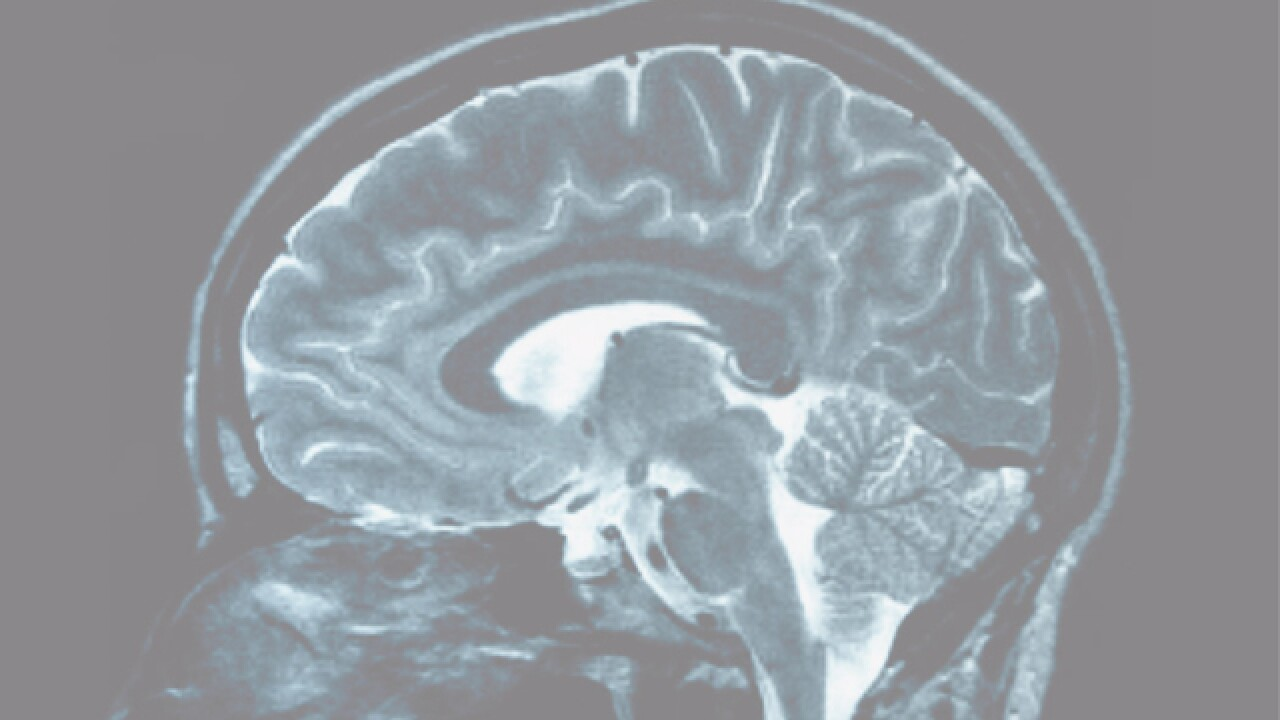Athletes 'back in the game' after concussion