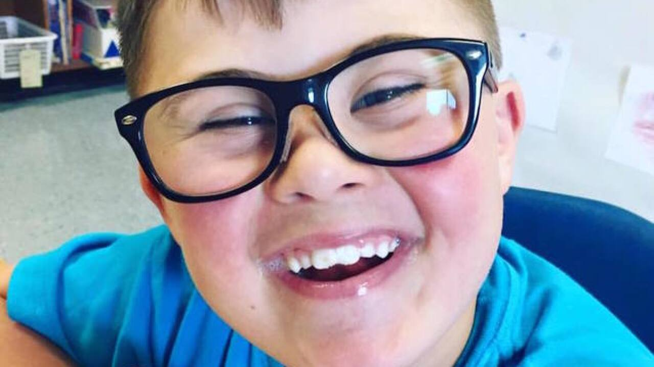 Mother of child with Down syndrome excluded from birthday party pens perfect response